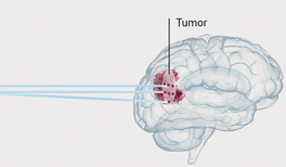 Mit Hadronen Krebs besiegen